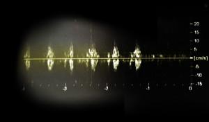 Heartbeat 6W